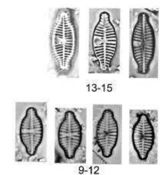 Planothidium Reichardtii Orig Ill1