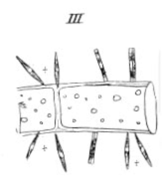 Synedra Dissipata  Kutz 1844 Drawing