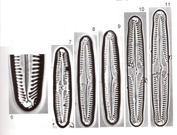 Pinnularia Parvulissima Scan 1
