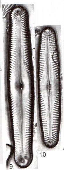 Pinnularia Parvulissima Scan 2
