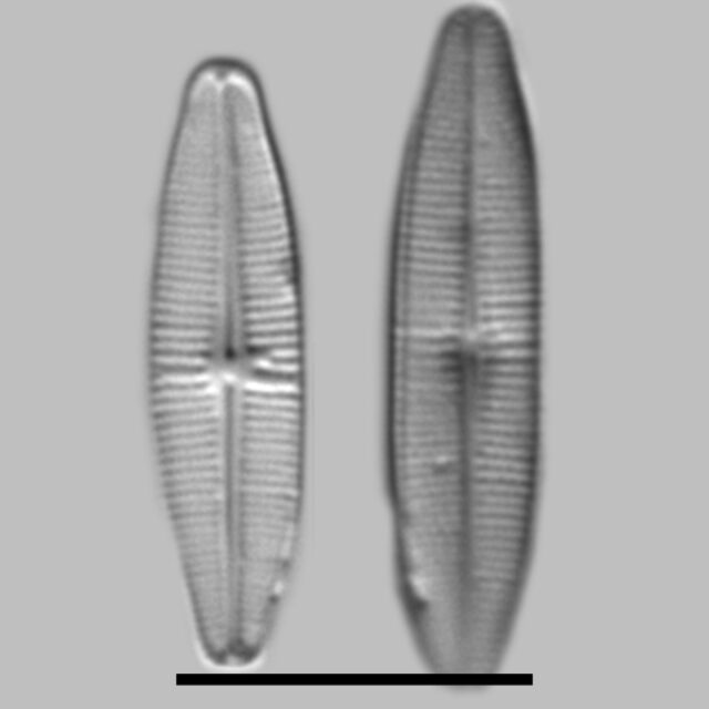 Achnanthidium Alpestre Aac