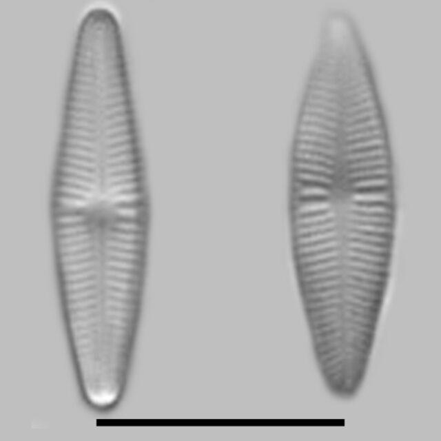 Achnanthidium Eutrophilum Aac