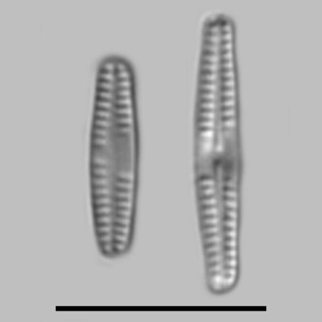 Achnanthidium Kriegeri Gcaac