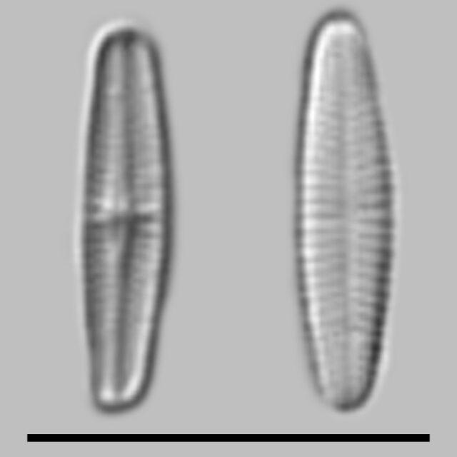 Achnanthidium Minutissimum Aac