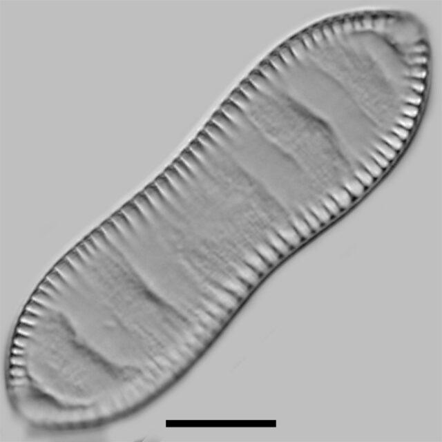 Cymatopleura Solea Iconic