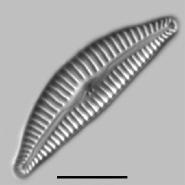 Cymbella Affiniformis Iconic