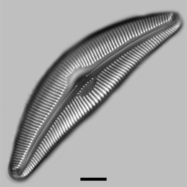 Cymbella Amplificata Iconic