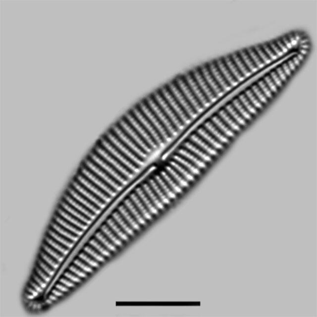 Cymbella Compacta Iconic