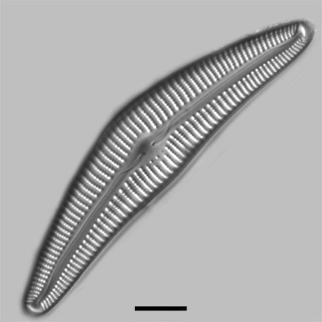 Cymbella Cymbiformis Iconic