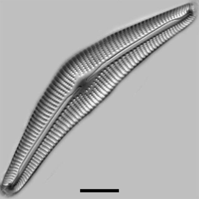 Cymbella Neocistula Iconic