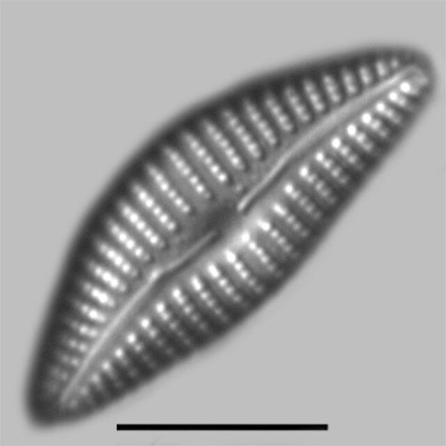 Cymbella Neoleptoceros Iconic
