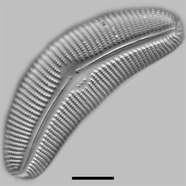 Cymbella Proxima F Gravida Iconic