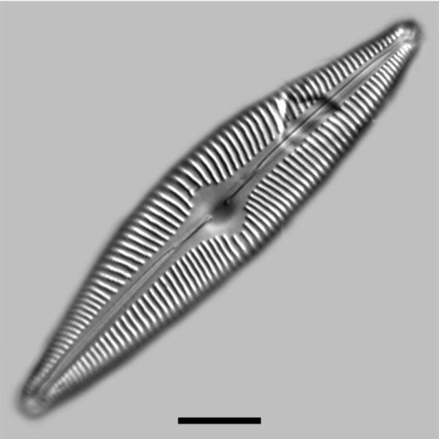 Cymbella Rainieriensis Iconic