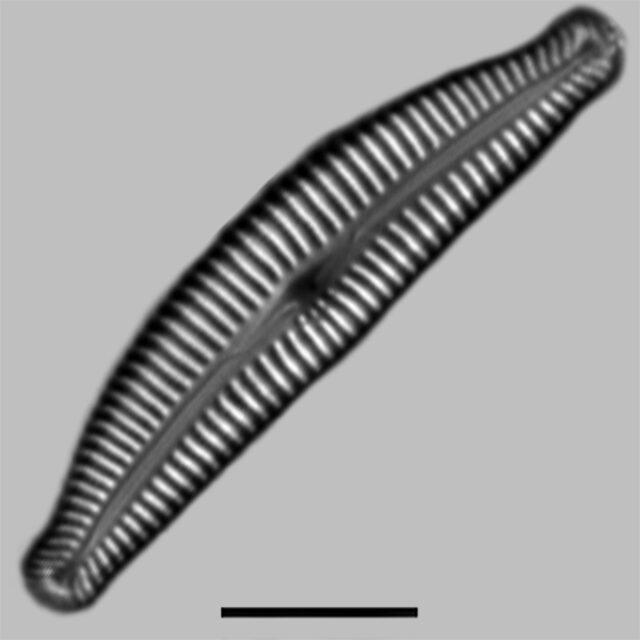 Cymbella Rumrichae Aac