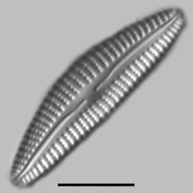 Cymbella Subleptoceros Iconic