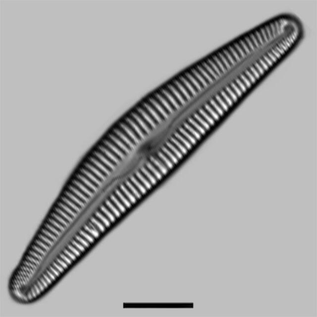 Cymbella Vulgata Aac