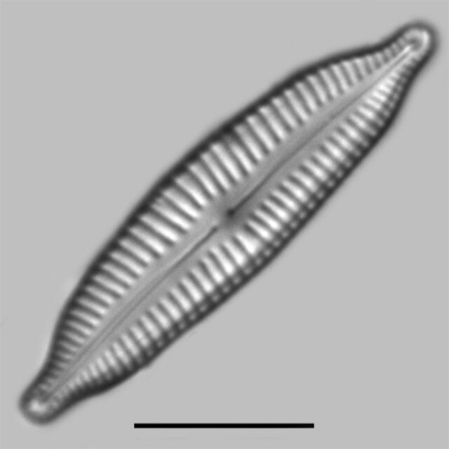 Cymbopleura Frequens Iconic