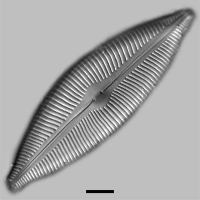 Cymbopleura Inaequalis Iconic