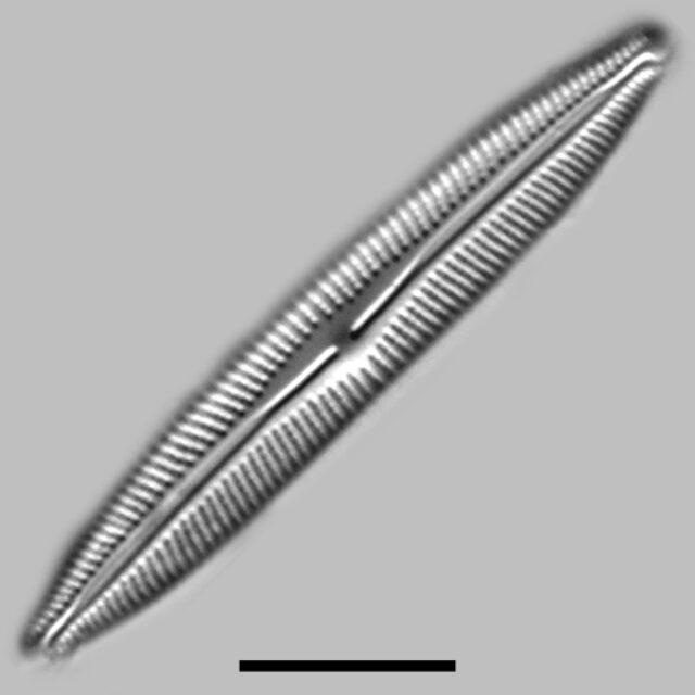 Cymbopleura Incertiformis Linearis