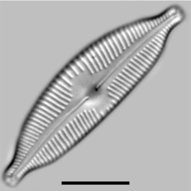 Cymbopleura Naviculiformis Iconic