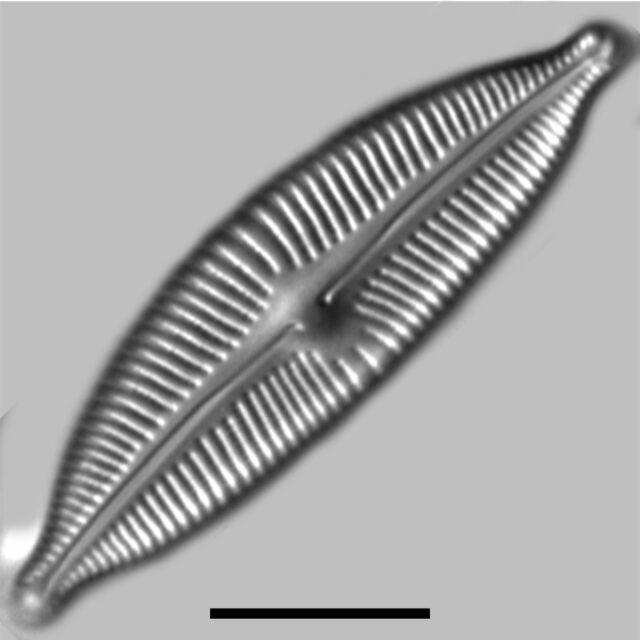 Cymbopleura Sublanceolata2 Iconic