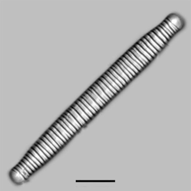 Diatoma Ehrenbergii Iconic