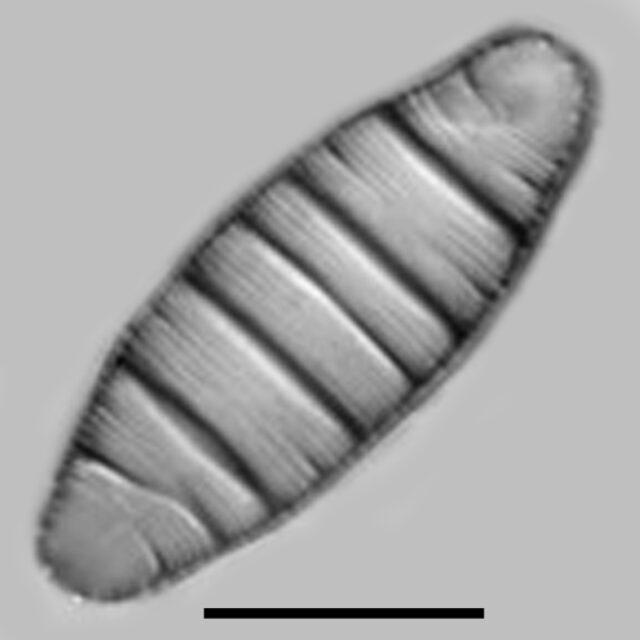 Diatoma Mesodon Aac