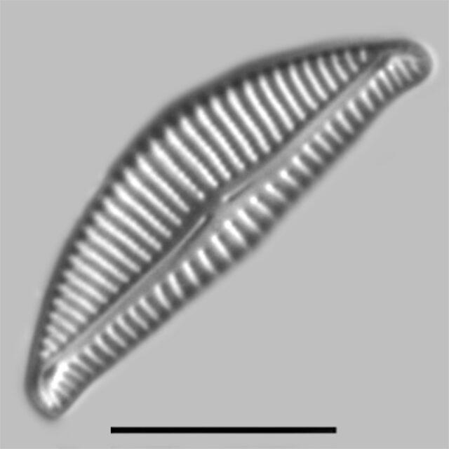 Encyonema Lange Bertalotii Iconic