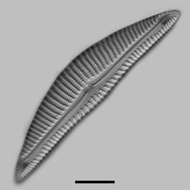Encyonema Minutum Pseudogracilis Iconic