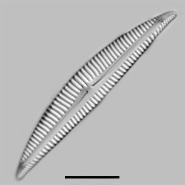 Encyonema Pergracile Iconic