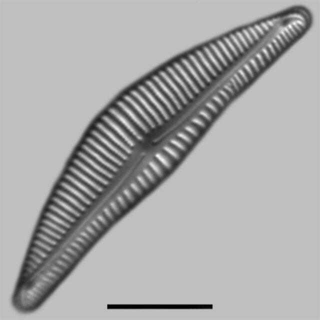 Encyonema Silesiacum Iconic