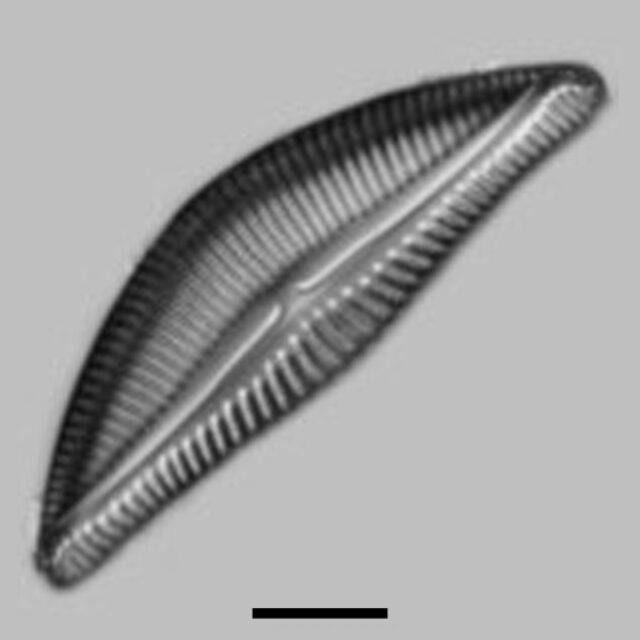 Encyonema Yellowstonianum Aac