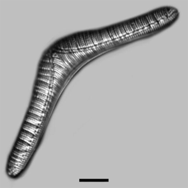 Epithemia Smithii Aac