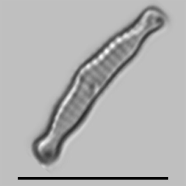 Eunotia Microcephala Iconic