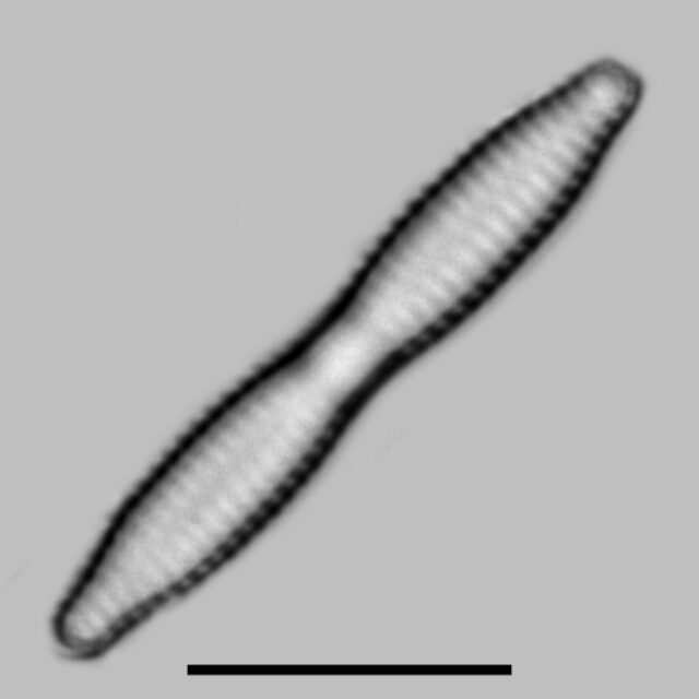 Fragilaria Mesolepta Iconic