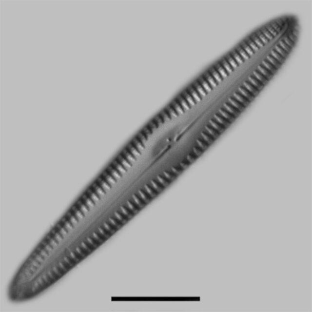 Gomphonema Freesei Iconic
