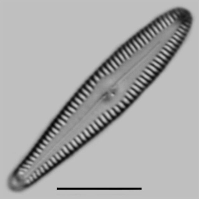 Gomphonema Incognitum Iconic