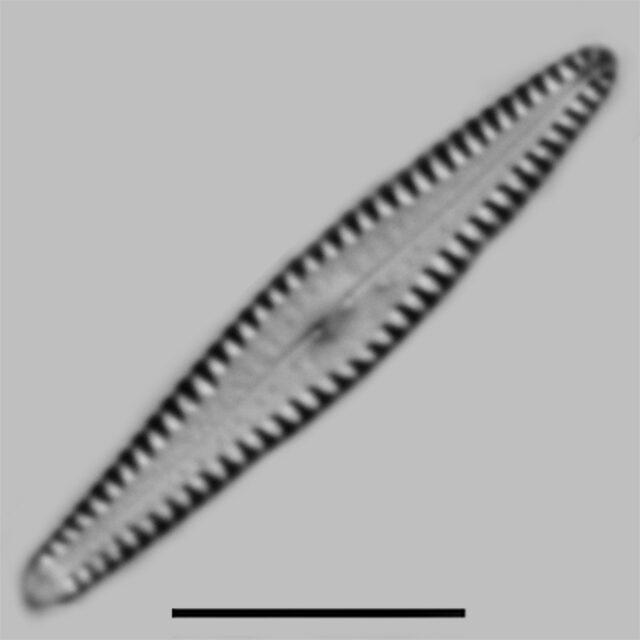 Gomphonema Louisianum Iconic