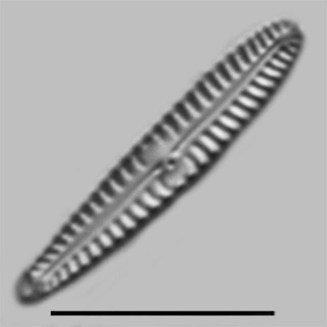 Gomphonema Pygmaeum Iconic