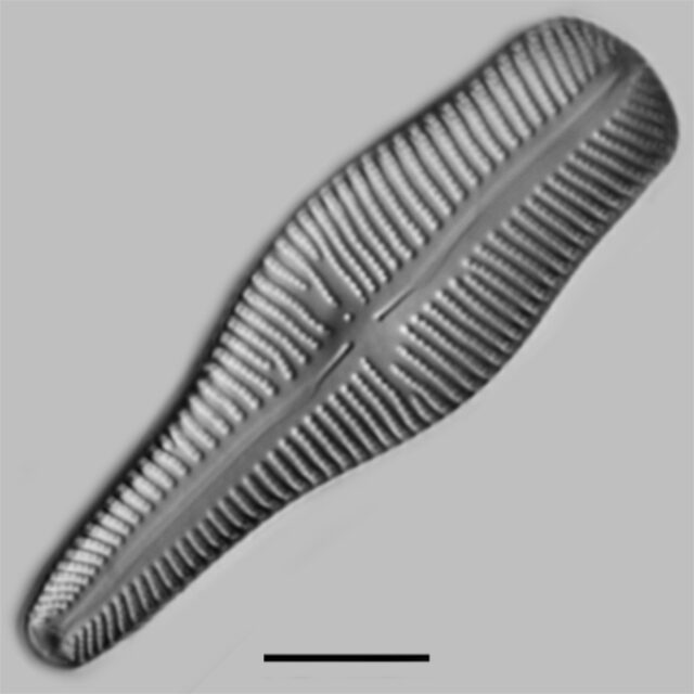 Gomphonema Turgidum Iconic