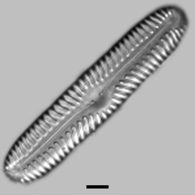 Pinnularia Lata Aac