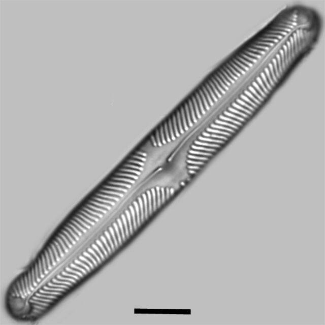 Pinnularia Microstauron Iconic
