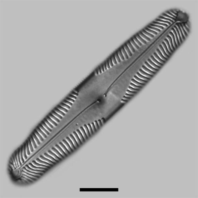 Pinnularia Parvulissima Iconic