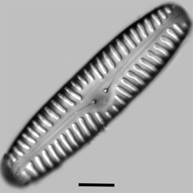 Pinnularia Rabenhorstii Iconic