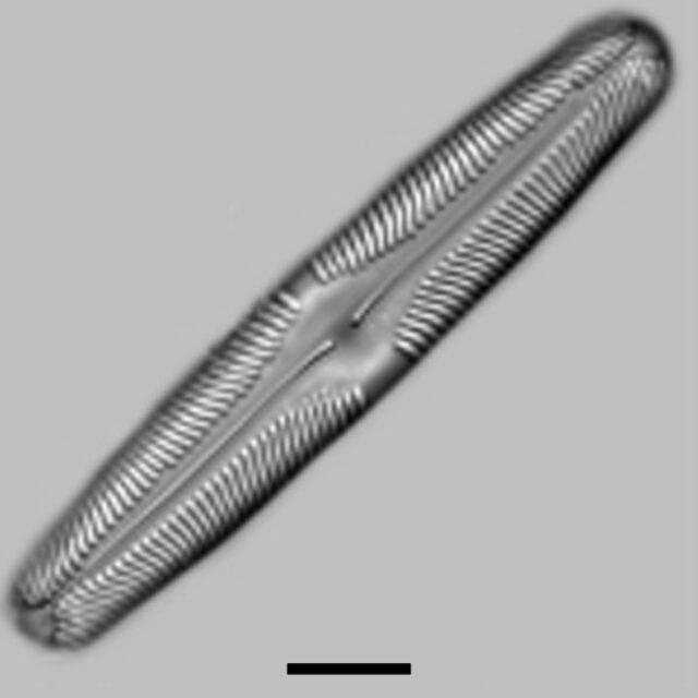 Pinnularia Rhombarea Aac