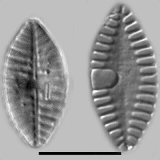 Planothidium Abbreviatum Iconic