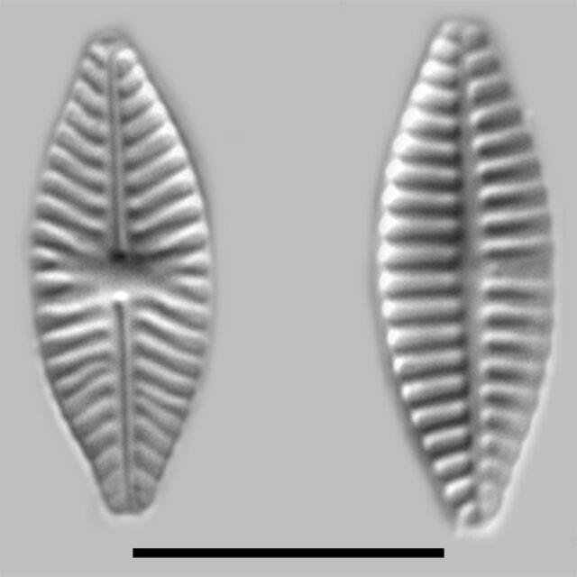Planothidium Delicatulum Iconic