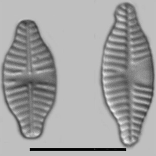 Planothidium Dubium Iconic