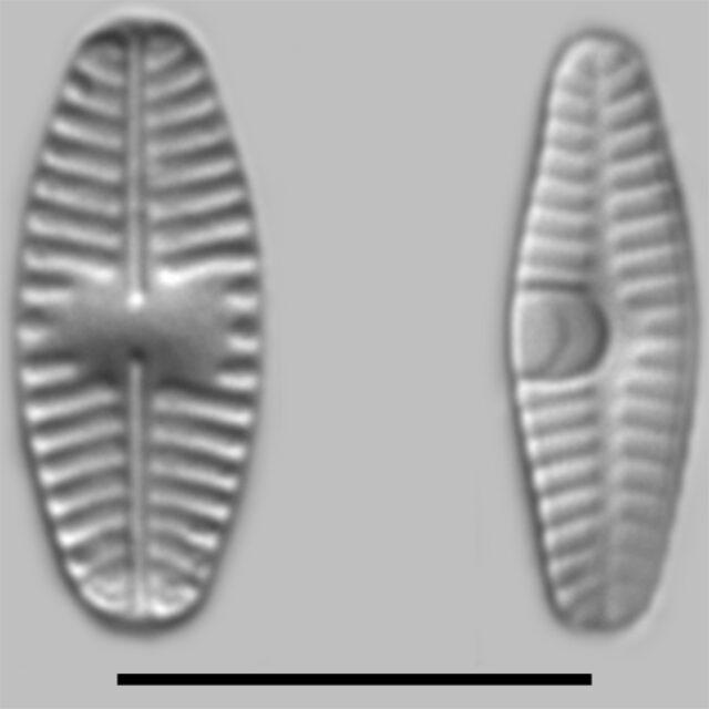 Planothidium Frequentissimum Iconic