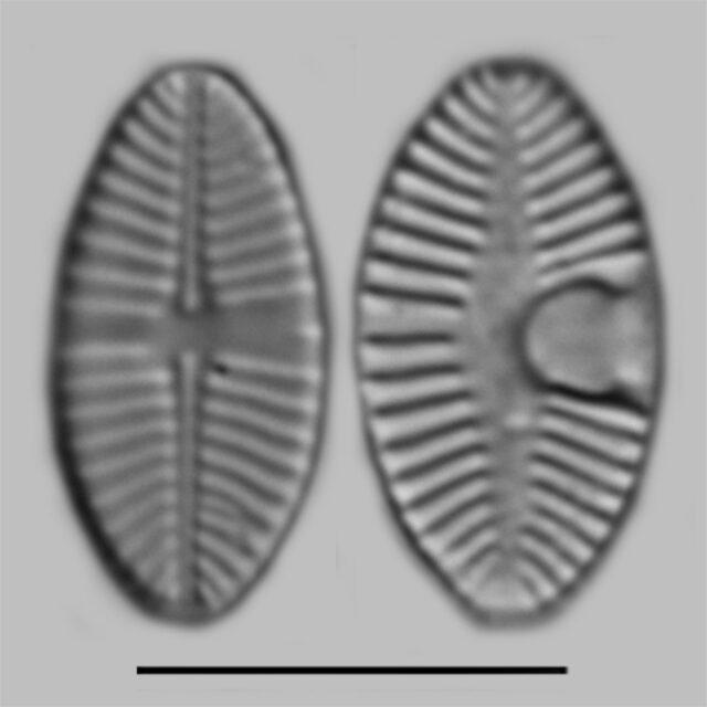 Planothidium Joursacense Iconic